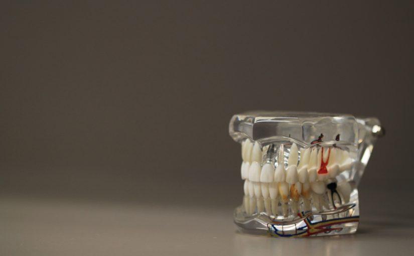 Złe podejście żywienia się to większe niedobory w zębach natomiast także ich utratę